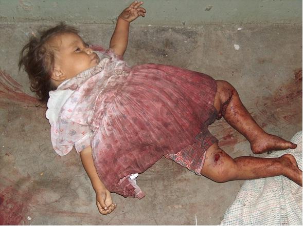 María Ángel, otra inocente de escasos 2 años de edad, víctima del terrorismo infame de las FARC.